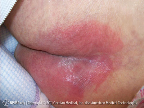 Pressure ulcer Category/Stage I: Non-blanchable redness of intact skin