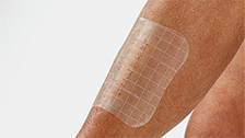 Wound monitoring